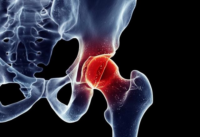 durere în articulația genunchiului și articulația șoldului