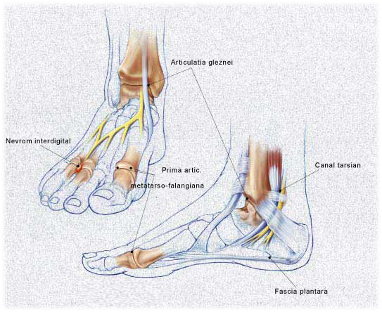artrita articulației piciorului semne de artroză a articulațiilor 1-2 linguri.