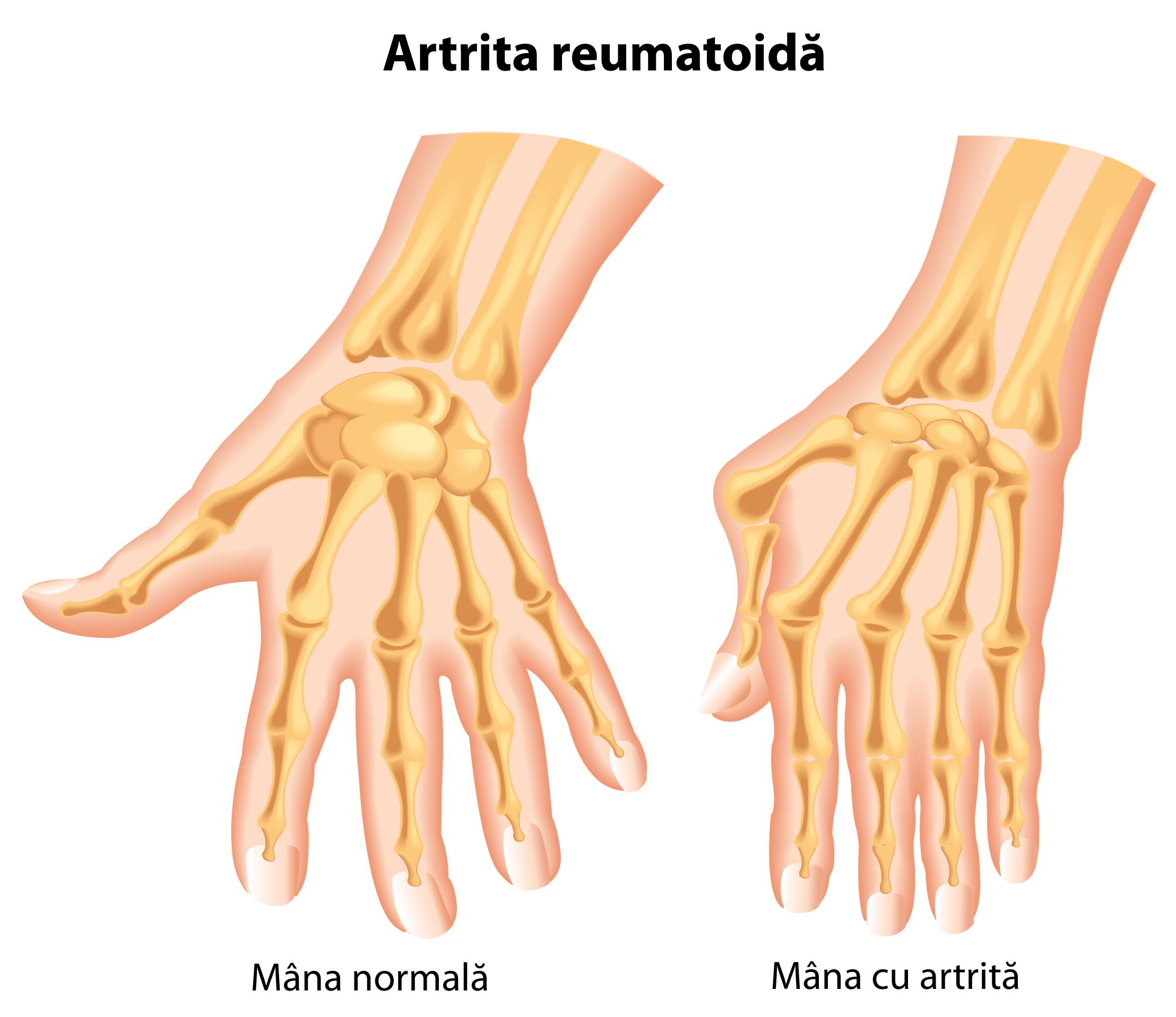 tratamentul poliartritei articulațiilor degetelor