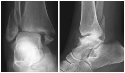 anchiloza tratamentului articulației gleznei