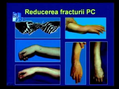 tratamentul articulațiilor cu ciocan dureri de genunchi pe timp