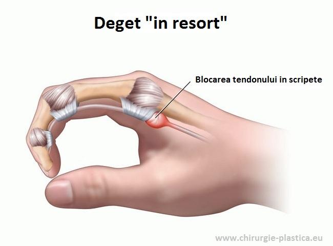 articulația degetului pe braț doare noaptea boli majore ale genunchiului