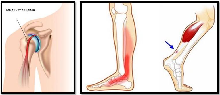 inflamația degetului de la picior în articulație