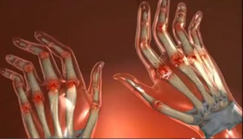 artrita și artroza tratamentului degetelor de la picioare