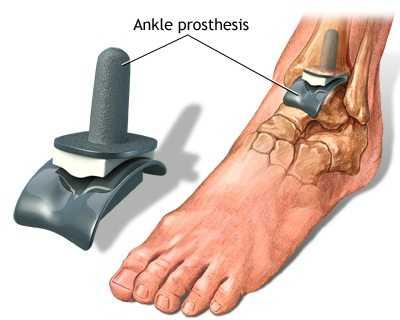 sinovita genunchiului decât ameliorează durerea degetul inelar în articulație doare