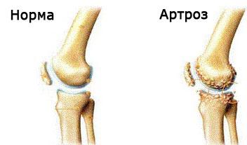 artrita artroza medicației articulației genunchiului gel de unguent pentru osteochondroză cervicală