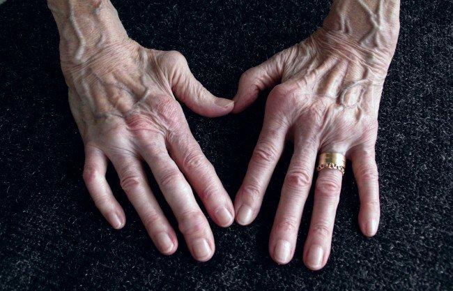 artrita reumatoidă în brațe tratamentul conservator al displaziei șoldului