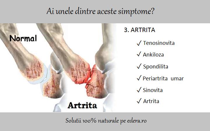 artroza în tratamentul articulației gleznei