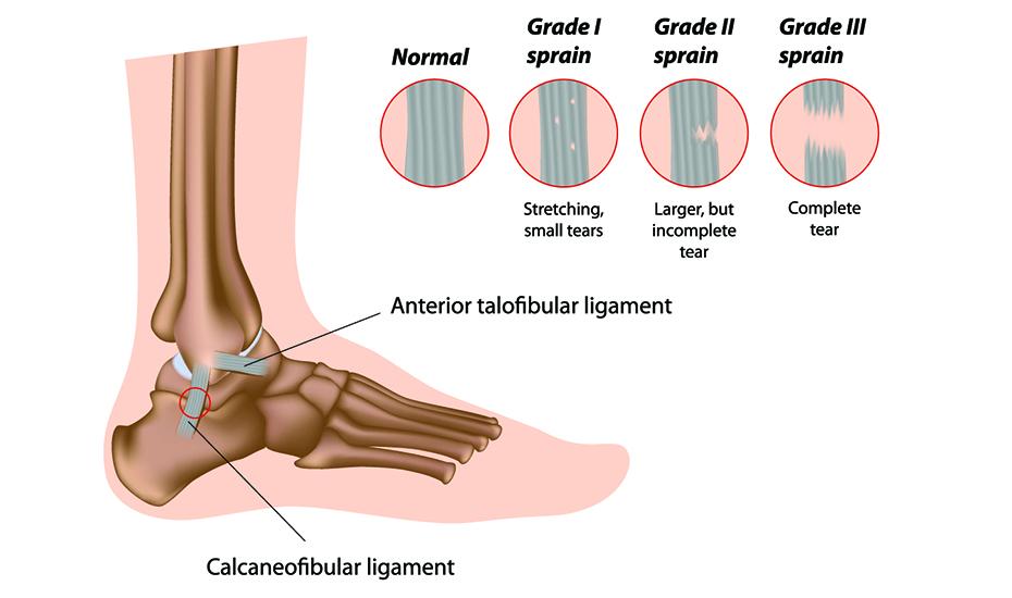 artroza 3 grade de tratament a gleznei