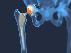 tratament cu artroza genunchiului cu masaj