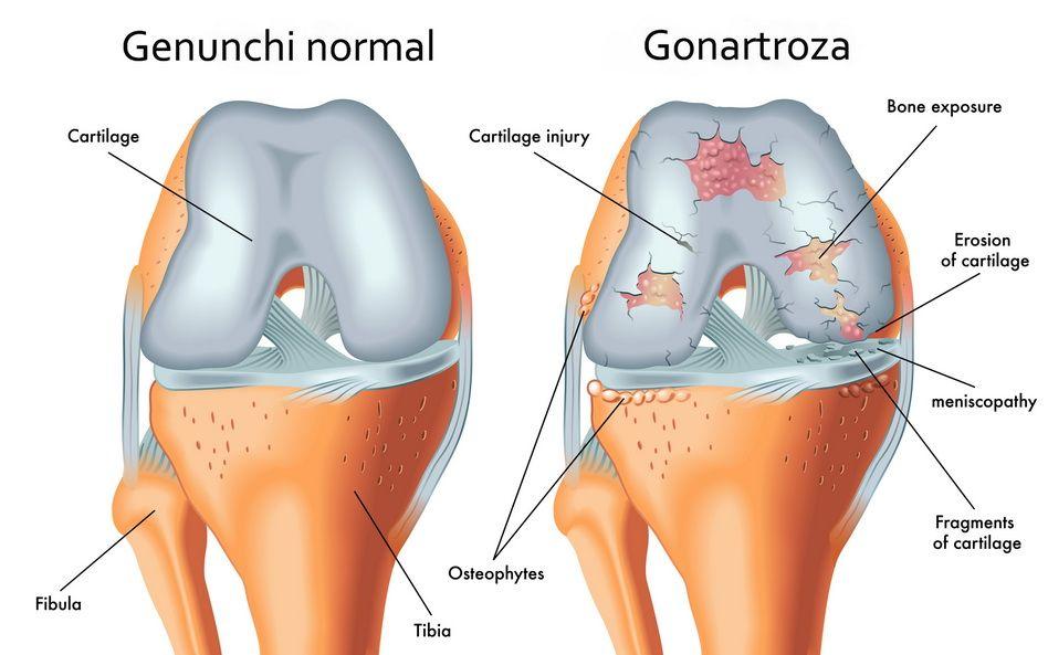 artroza articulației genunchiului. Tratament de 1 grad ajută dimexidul la durerile articulare