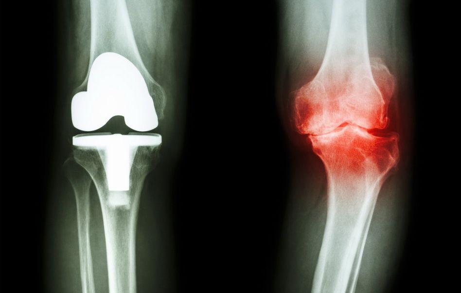 artroza articulației genunchiului. Tratament de 1 grad blocarea articulației umărului după rănire