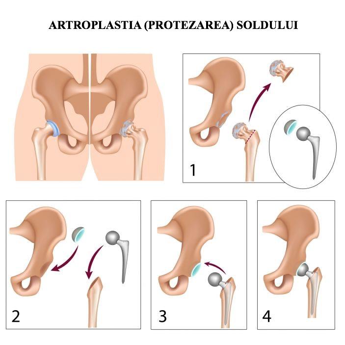 artroza de gradul III a articulației șoldului cum să protejezi articulațiile de inflamații