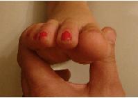 artroza metatarsofaringiană unguent în tratamentul artrozei
