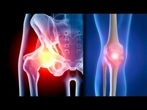 tratamentul simptomelor inflamației șoldului