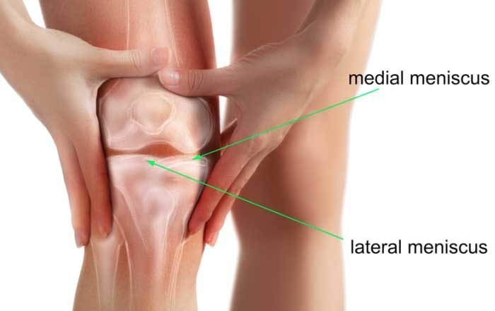 deteriorarea meniscului medial al tratamentului articulației genunchiului stâng