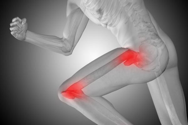 durere articulară și deformare atunci când articulațiile doare, pot fi încălzite