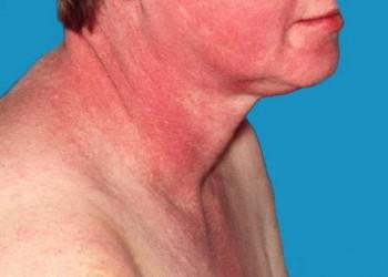 simptomele bolilor de țesut conjunctiv la femei