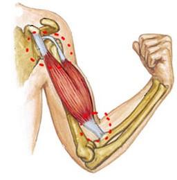 boli ale articulației cotului 3 grade