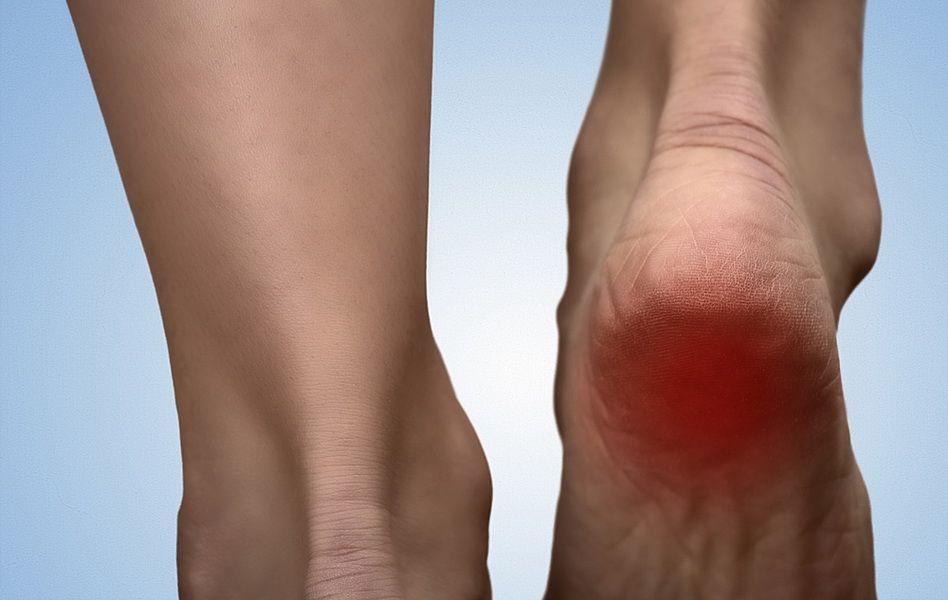tratamentul artrozei piciorului în 2 etape artroza simptomelor și tratamentului articulațiilor vertebrale costale