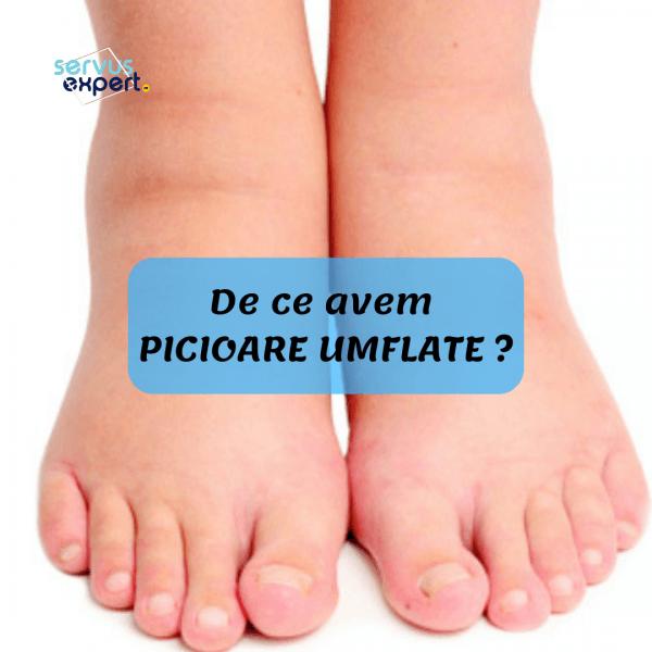 dureri de genunchi la nivelul articulației dureri ascuțite în articulațiile mâinilor