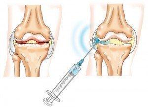 inflamația articulară la un adolescent unguent care îmbunătățește circulația sângelui în osteochondroză