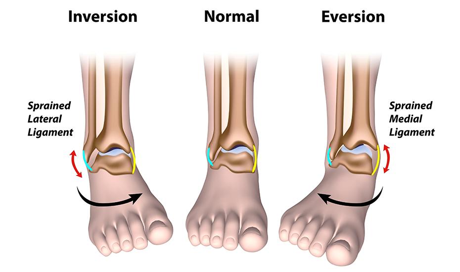 artroza piciorului articulației gleznei
