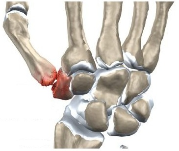 care este cauza durerii în articulația încheieturii