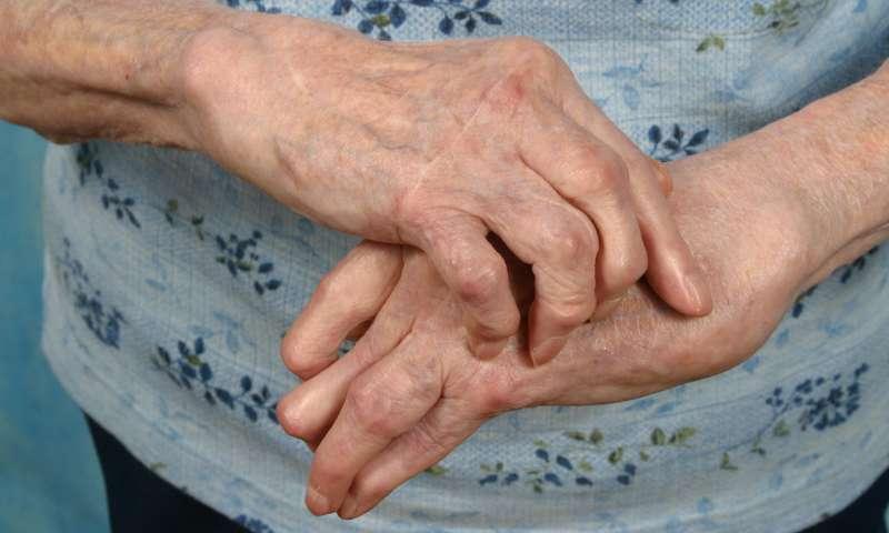 care este diferența dintre artrita și tratamentul artrozei unguente de încălzire pentru artroza articulației genunchiului