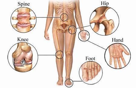 cauzele artrozei tuturor articulațiilor