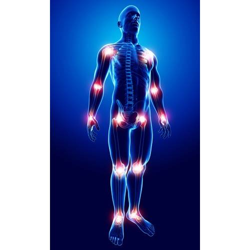 artrita articulara de sold dureri de genunchi după mers