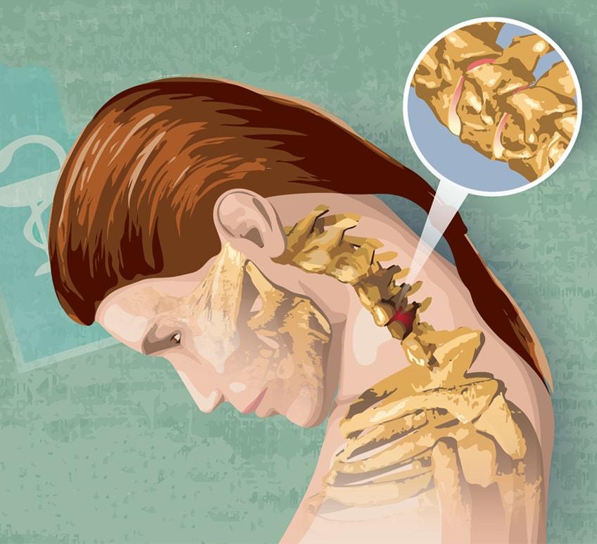 tratamentul articular la șoimi ameliorarea durerii pentru dureri articulare