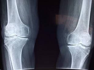 pastile de tratare a articulațiilor genunchiului artritei durere în vene la nivelul articulațiilor cotului