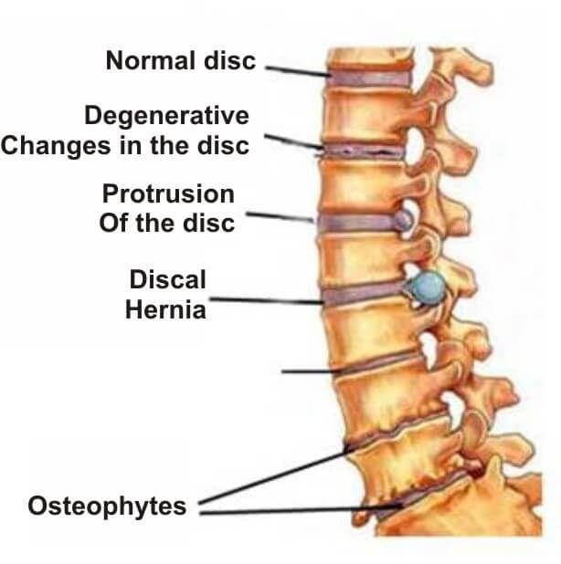 tratamentul articulațiilor rict leziuni la nivelul palmei