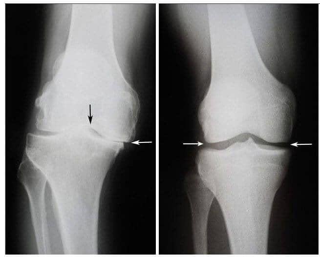 școala de tratament cu artroză tratamentul osteoartrozei articulației șoldului la 2-3 grade
