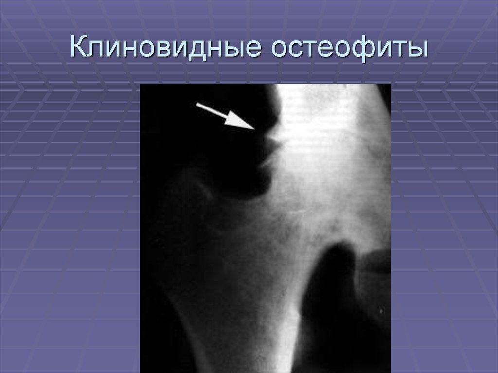 unguente pentru inflamația articulației umărului dureri articulare la stânga
