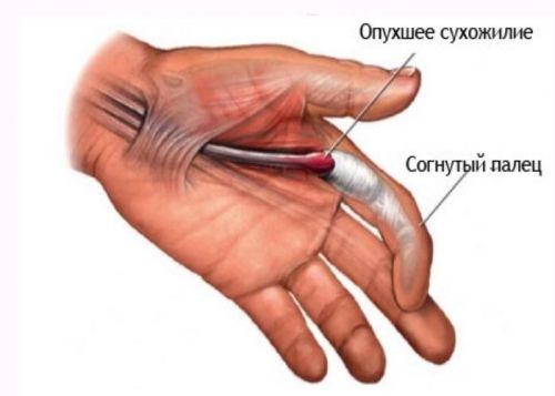 cum să înțeleg articulațiile sau mușchii răniți cum să tratezi articulațiile bolnave ale genunchiului