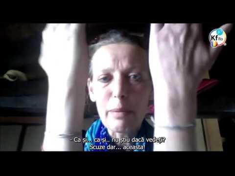 cum să tratezi artrita bruceloasă braț drept articulație dureroasă