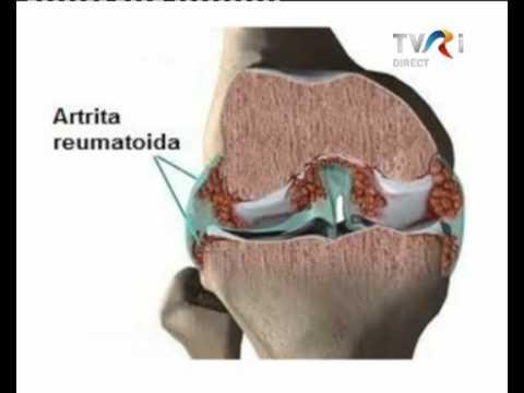 cum să tratezi artrita bruceloasă unguent de încălzire pentru osteocondroza cervicală