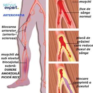 articulații creak în medicina genunchilor eliminați inflamația în articulație de pe deget