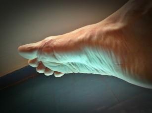 umflarea lungă a genunchiului