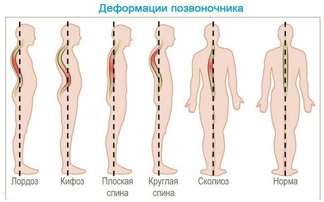 cum să înțeleg articulațiile sau mușchii răniți