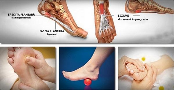 tratamentul artritei artritei piciorului dureri de gleznă din exterior