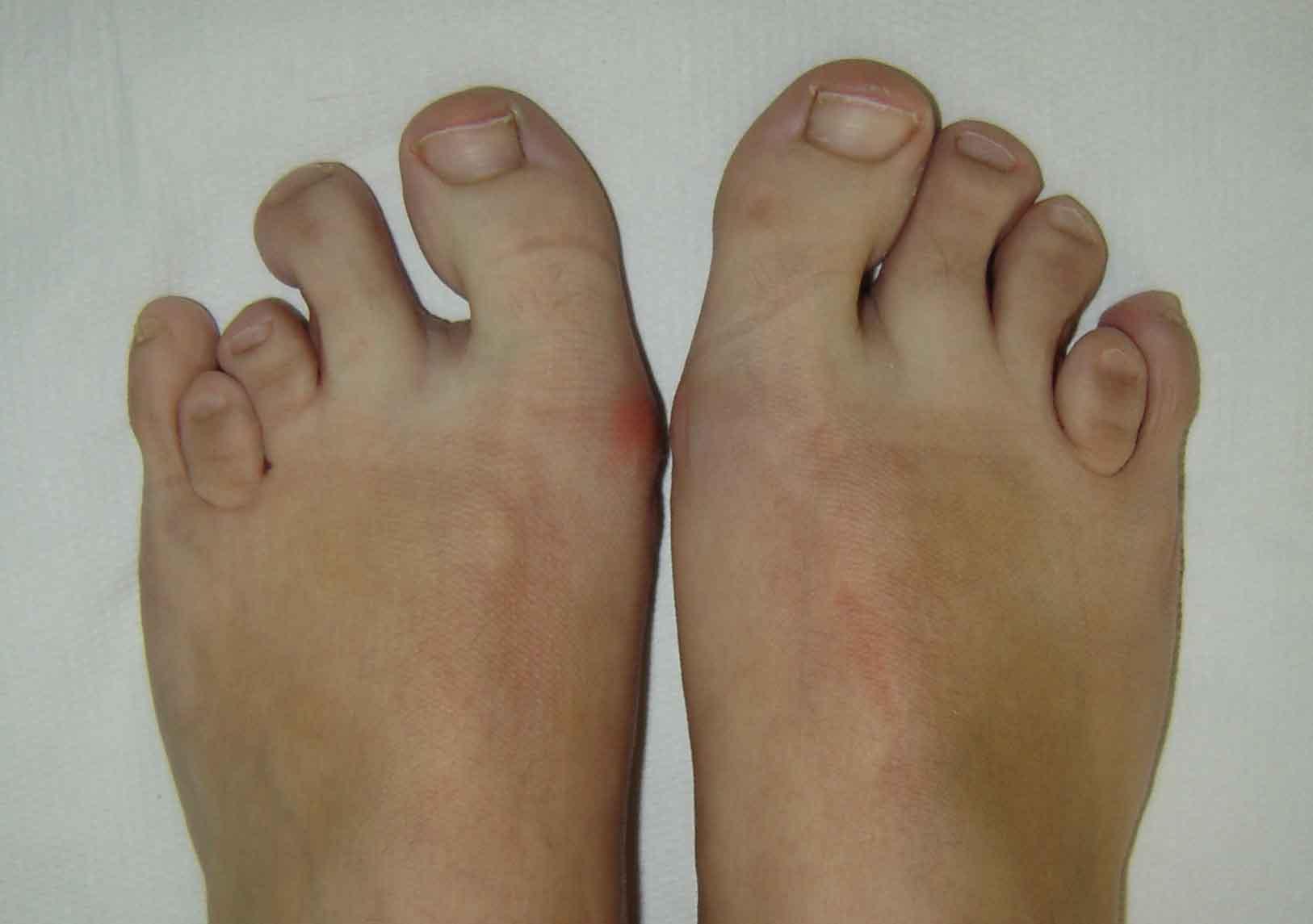 deteriorarea capsulei articulației degetului de la picior articulațiile coatelor și genunchilor doare