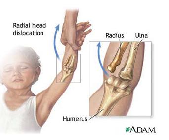 durere în articulația cotului și mușchii brațului