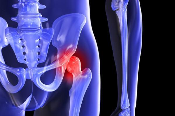 durere în articulația șoldului până la genunchi inflamație purulentă a articulațiilor degetelor