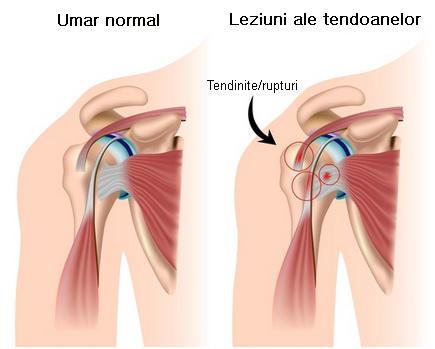 doa metode de tratament articulare cauterizarea articulațiilor