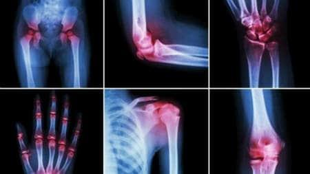 dureri articulare dureri severe
