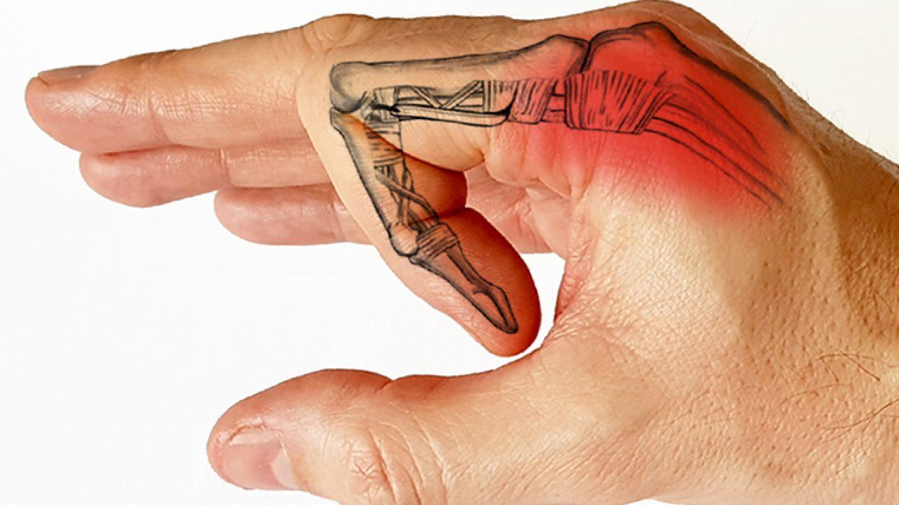 este posibilă vindecarea artritei degetului mare