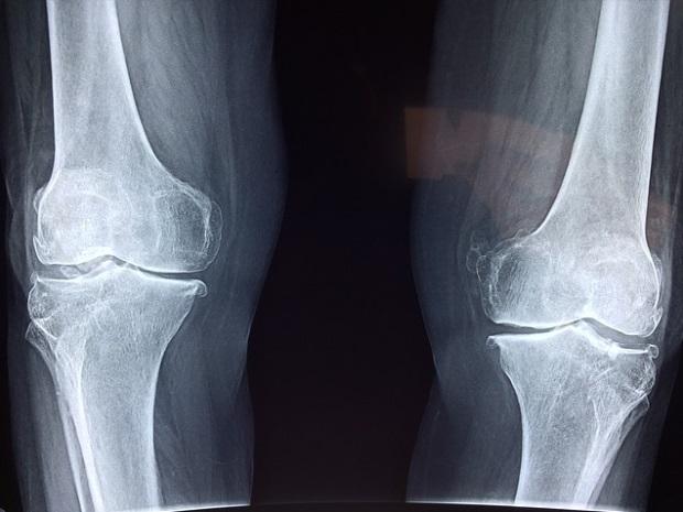 dureri de genunchi ghemuite care medicamente sunt mai bune pentru durerile articulare